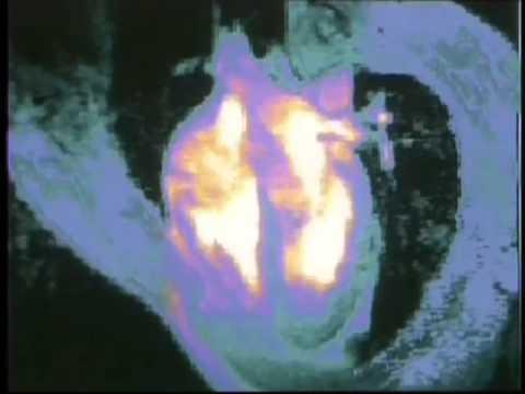 Микроинфаркт: симптомы и первые признаки у женщин и у мужчин