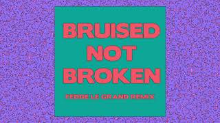 Matoma   Bruised Not Broken (feat. MNEK & Kiana Ledé) [Fedde Le Grand Remix] {Official Audio}