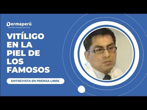 Entrevista Dr. Aparcana – Prensa Libre – TRATAMIENTO VITILIGO