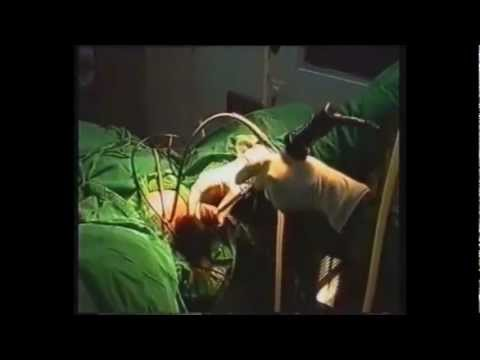 Procedure sulla prostata