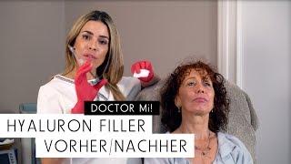 Hyaluron Filler Vorher / Nachher | DOCTOR MI! Folge 9