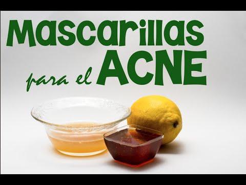 4 mascarillas caseras para eliminar el acné de la piel de la nariz, cara y espalda