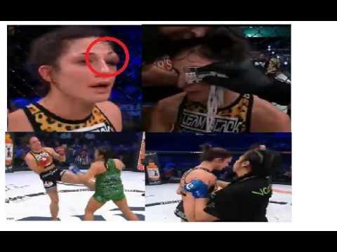 Bellator 172 - Veta Arteaga Vs Brooke Mayo Post Fight Analysis