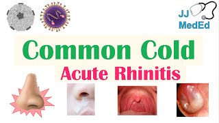 Common Cold (Acute Rhinitis) | Causes (ex. Coronaviruses), Risk Factors, Transmission, Symptoms