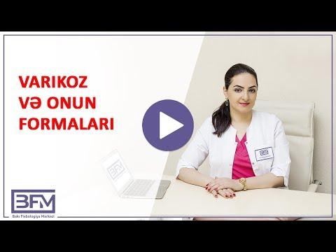 Tratament metode folclorice varicoase