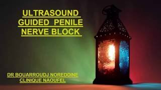 ULTRASOUND GUIDED  PENILE NERVE BLOCK