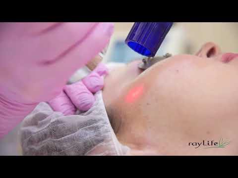 JOULE – лазерная шлифовка кожи Contour TRL