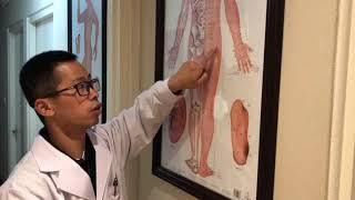 3-minute Chinese Medicine Study---Sciatica