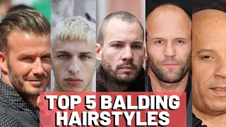 Hairstyles For Balding Men - Our TOP 5