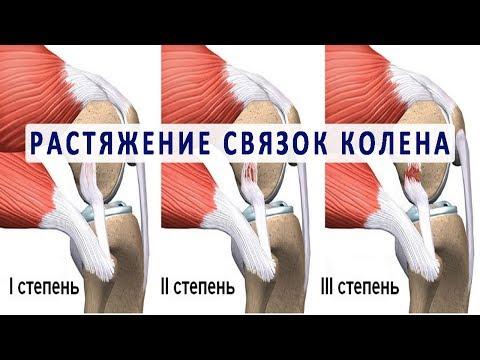 Что нужно знать о растяжении связок колена