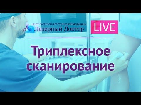 УЗИ сосудов ног - трансляция в Periscope