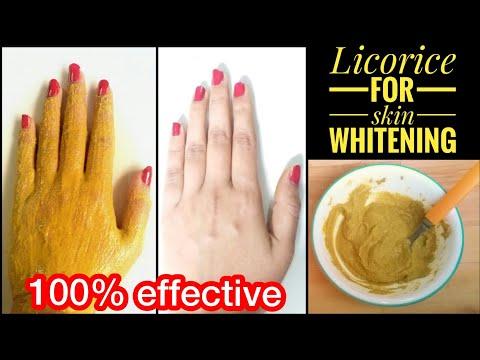 Rizette pagpaputi cream magic rizette magic whitening cream review