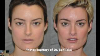 How does the lip lift relate to dentistry? Beverly Hills Dentistry