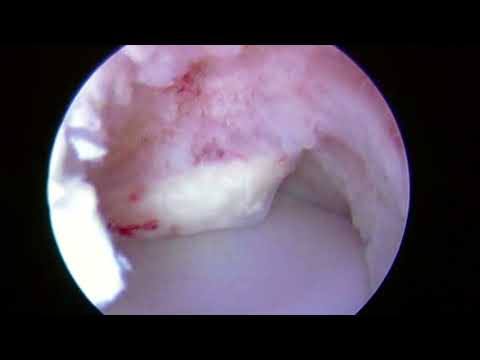 Osteochondral Grafting for Capitellar OCD