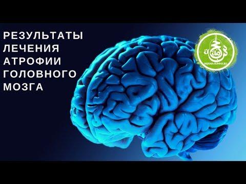 Результаты лечения Атрофии головного мозга   Обучение Хиджаме онлайн видео