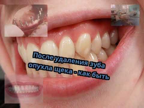 После удаления зуба опухла щека - как быть