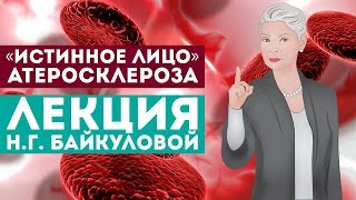 «Истинное лицо» атеросклероза - лекция доктора Байкуловой