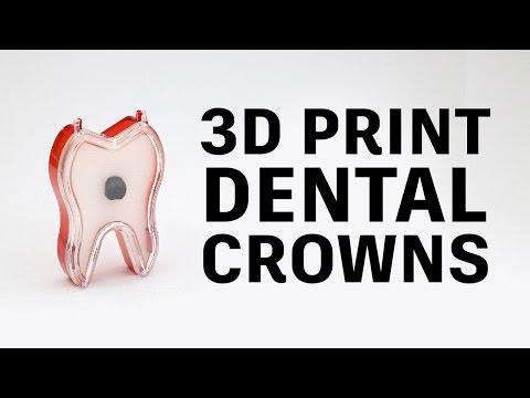 How to 3D print PFM dental crowns // Glidewell Laboratories