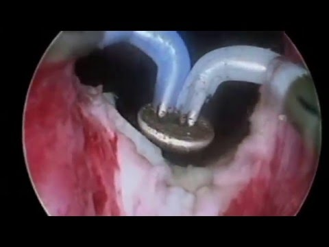Les rappels qui faisait lopération sur les veines la varicosité