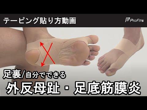 足底筋膜炎などの予防に!足裏アーチのテーピング