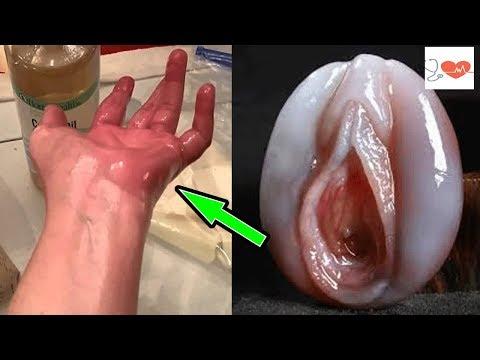 Problemy z prostatą i krążenie krwi