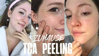 Anleitung:  TCA Peeling für Zuhause  ein neues Gesicht