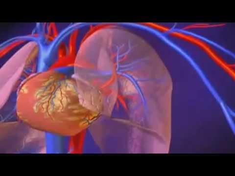 Défaillance du dispositif pour mesurer la pression sanguine