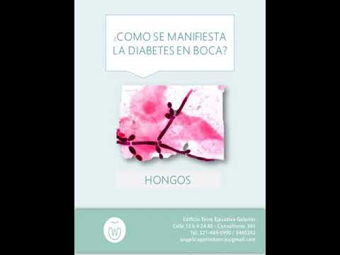 Condiciones para la diabetes y las causas de
