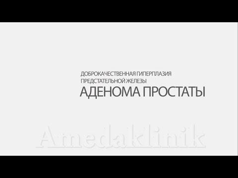 Узи днепропетровск предстательной железы