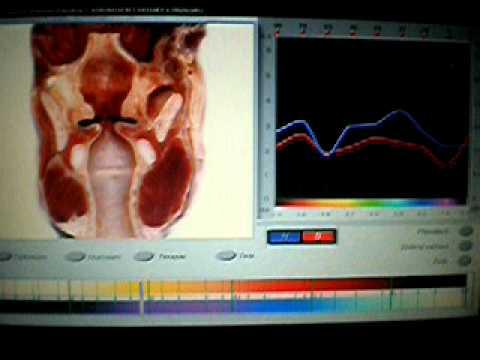 OBERON - Titanium -diagnostický a terapeutický přístroj