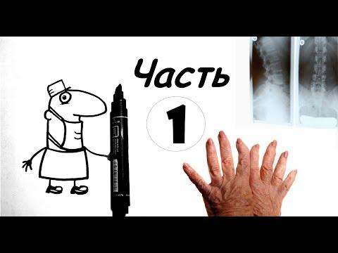 Ревматология ЗА 5 МИНУТ - Часть 1( Болезнь Бехтерева, ревматоидный артрит, реактивный артрит)