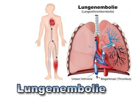 Die Einordnung bei der Thrombophlebitis