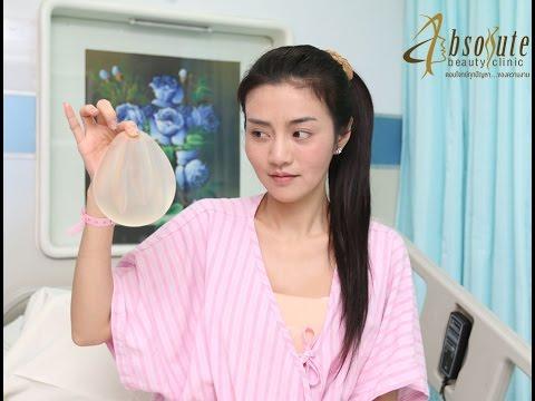 อัพเดทข่าว คุณเชอรี่ สามโคก หลังพักฟื้นจากเสริมหน้าอก Absolute Beauty Clinic