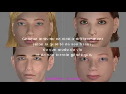 Le masque pour les yeux protivootetchnaya