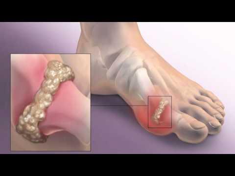 Воспаление ниже коленного сустава