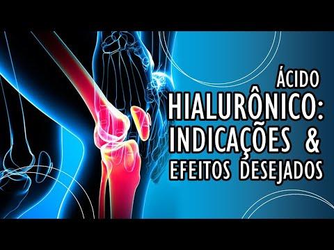 Recenzii ale tratamentului cu artroza reumatoidă