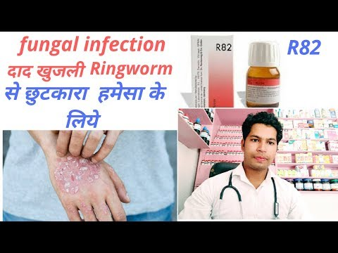 German Antifungal Drop | Homeopathic Medicine For Fungal