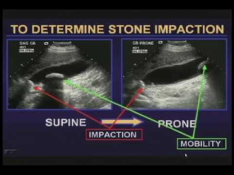 MRI Magnetic resonance imaging of the prostate