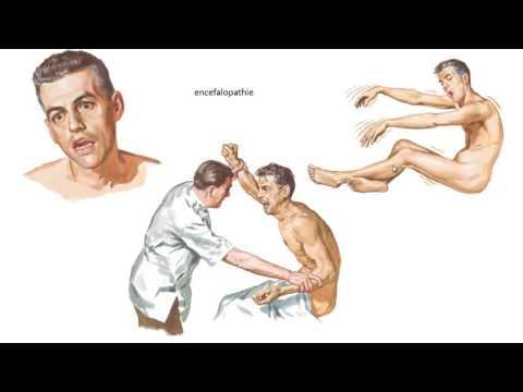 Arzneimittelkombinationen arterielle Hypertonie zu behandeln