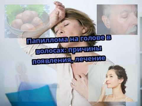 Папиллома на голове в волосах: причины появления, лечение