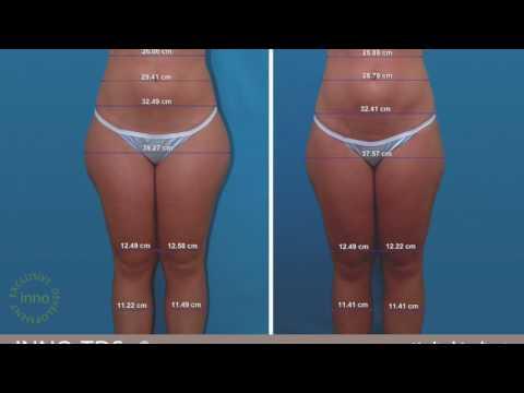Slimming video sa YouTube