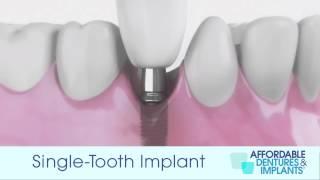 Demo: How Do Single-Tooth Implants Work?