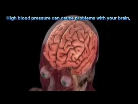 Que pour traiter lhypertension hypertension