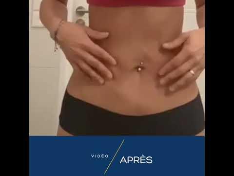 Renuvion abdomen à 3 Mois