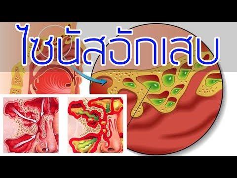 รักษาเส้นเลือดขอดของกระเพาะอาหาร