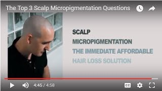 WHAT ARE THE TOP THREE SCALP MICROPIGMENTATION QUESTIONS?