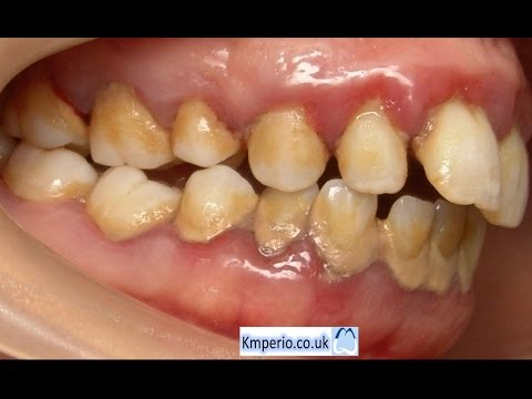 Video Treatment of Periodontal Disease-Before and After.