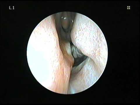 Endometrial cancer or fibroids