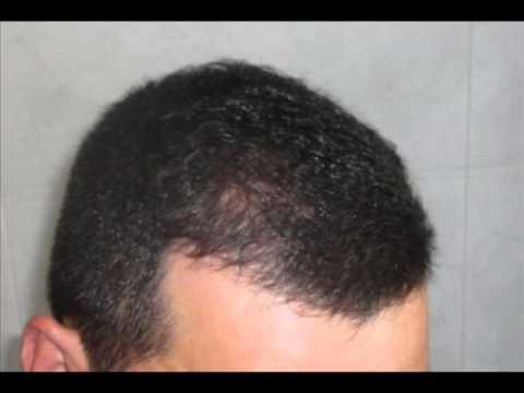 Volume radicale di rimedi di gente di capelli