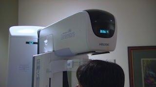 3D Mammograms